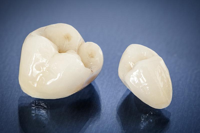 Dental Crowns in Kaneohe