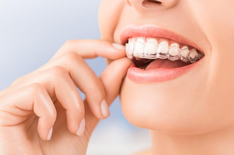 Orthodontics in Kaneohe