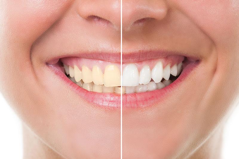 Teeth Whitening in Kaneohe